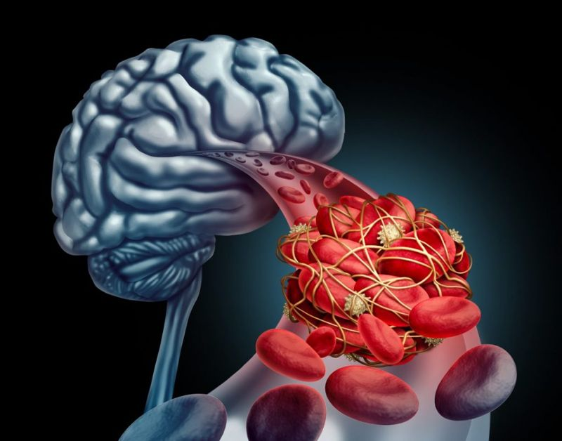 what is an embolism