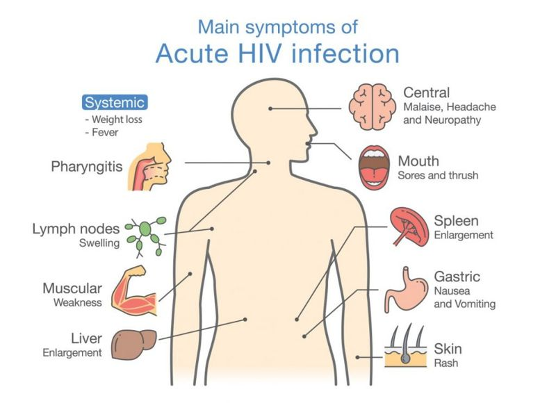 HIV Communicable diseases
