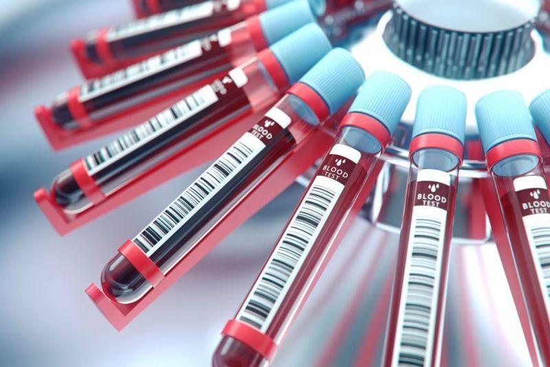 blood lab equipment