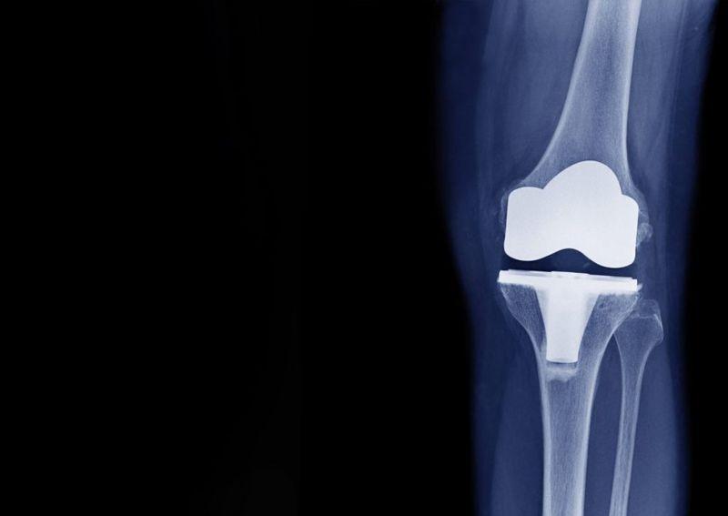 treatments for arthrosis