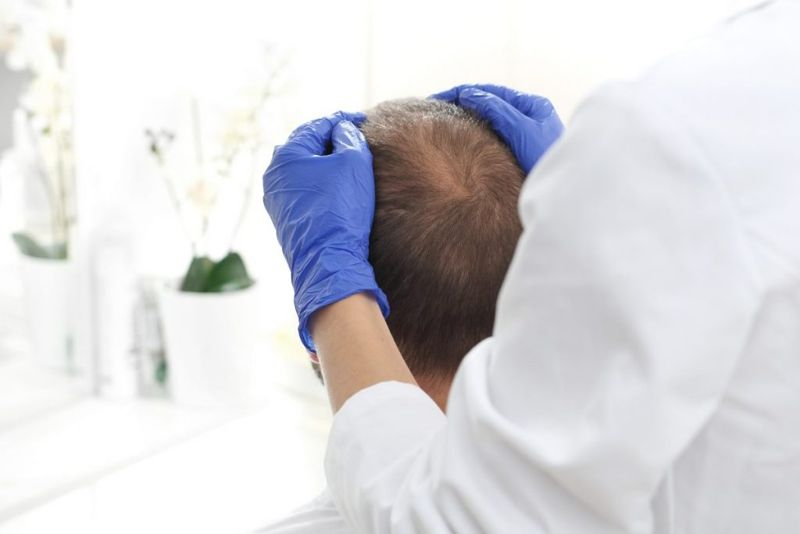 testing for diffuse hair loss