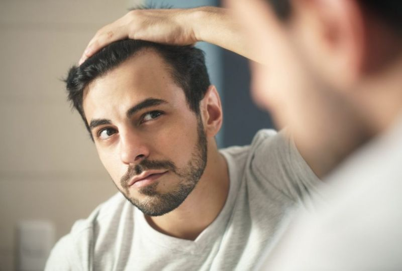 cycle diffuse hair loss