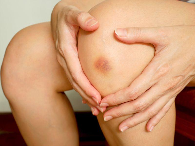 dry types of gangrene