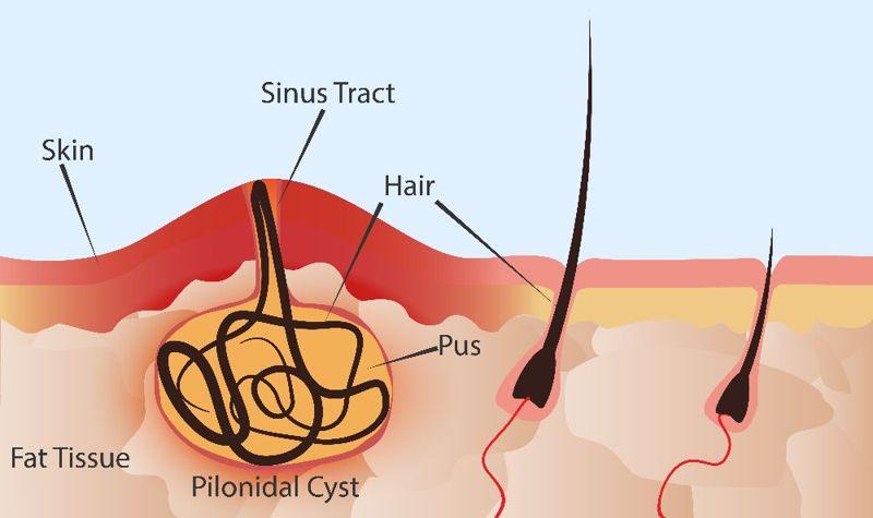 Pilonidal Sinus