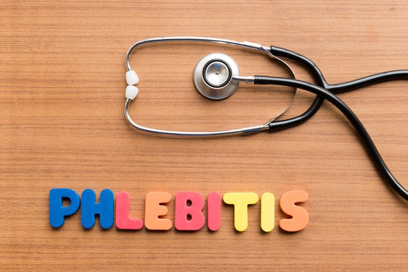 10 Facts About Phlebitis