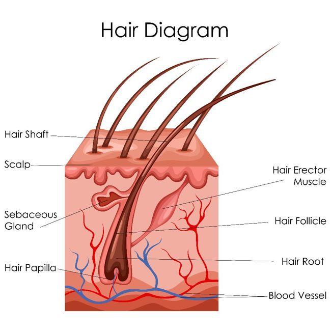 Causes of Pilonidal Sinus?
