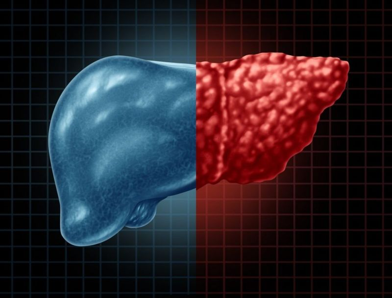 Hepatomegaly signs and symptoms