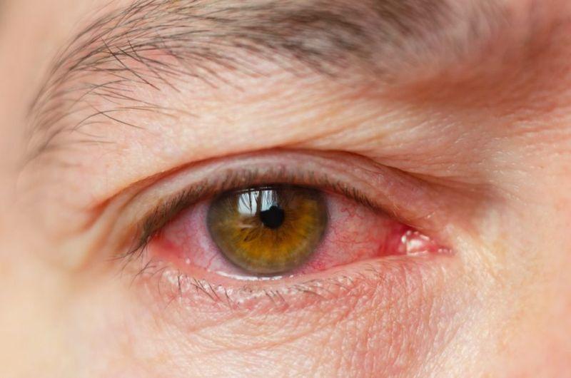 eye burning Felty syndrome