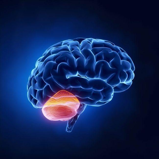ataxia brain