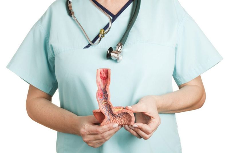 anatomy esophagus