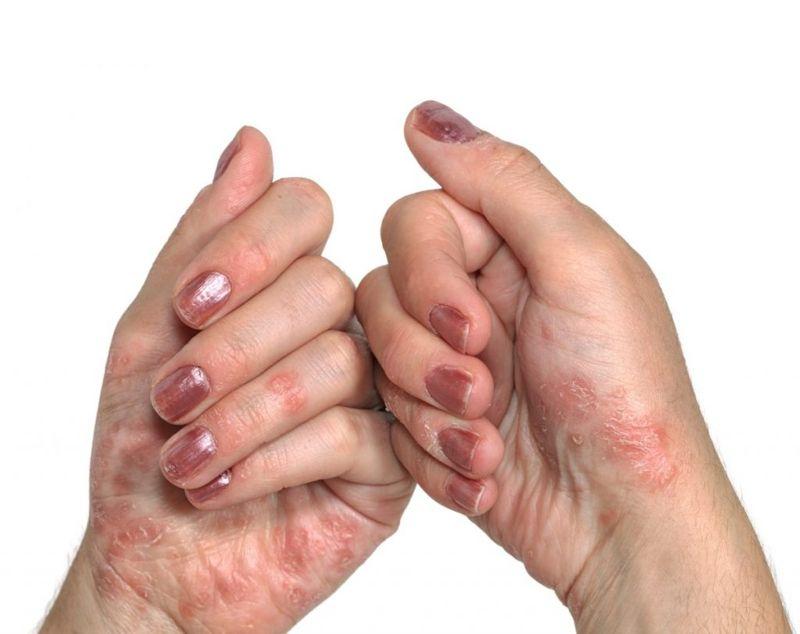 psoriasis exfoliate salicylic acid
