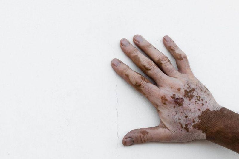vitiligo white patches on the skin