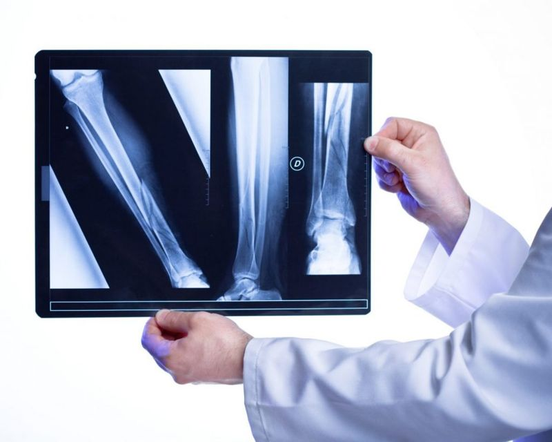 sports Fracturess