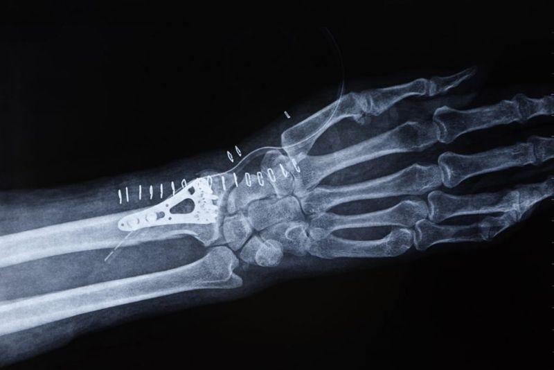 healing scaphoid fracture