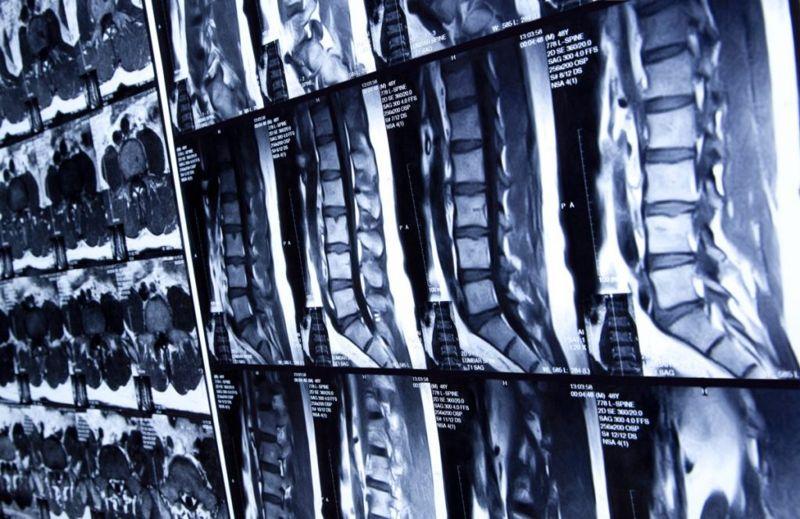 skeletal system spine