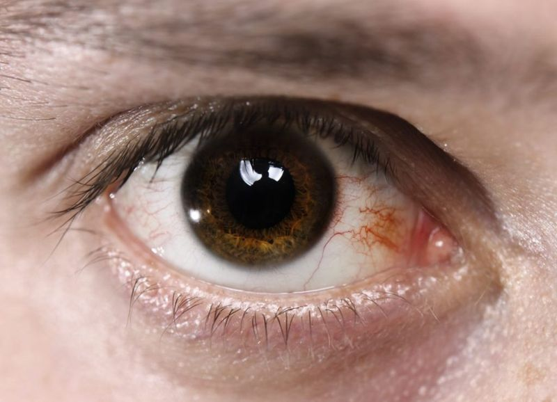 arthritis vision