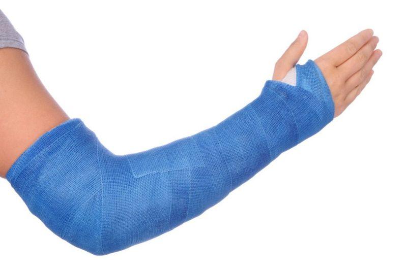treatment scaphoid fracture