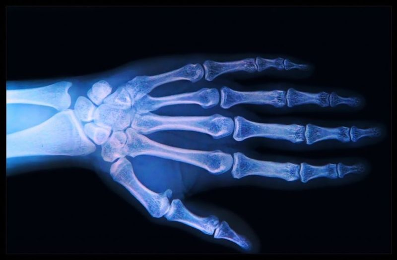 do i have scaphoid fractures