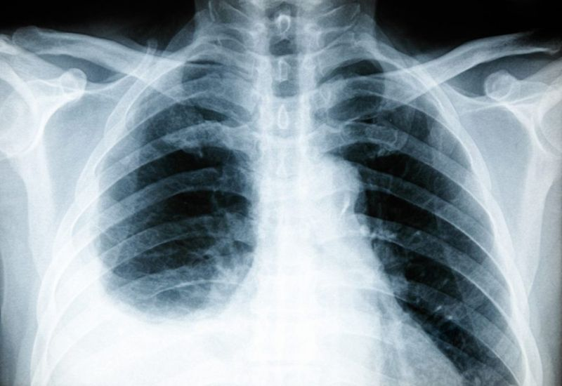 Lung infections facts