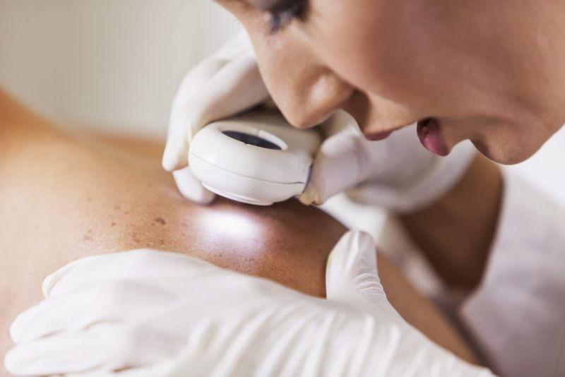 doctor skin scarring