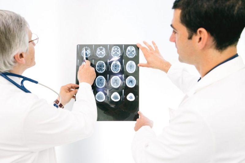 diagnosing types of seizures