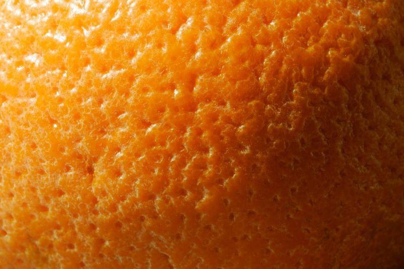 burn treatments skin graft