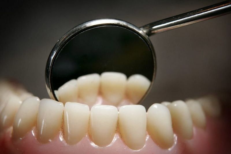 skeletal system teeth