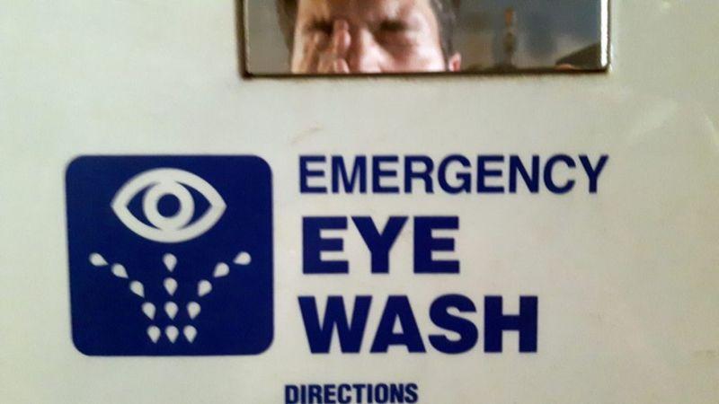 eye wash chemical eye burns