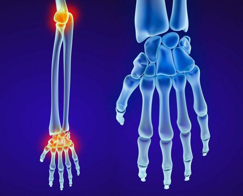 necrosis scaphoid fracture