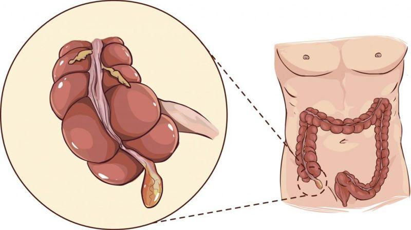 valve the appendix