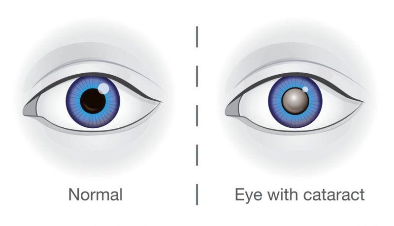 complications chemical eye burns