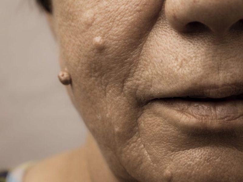exterior benign tumors