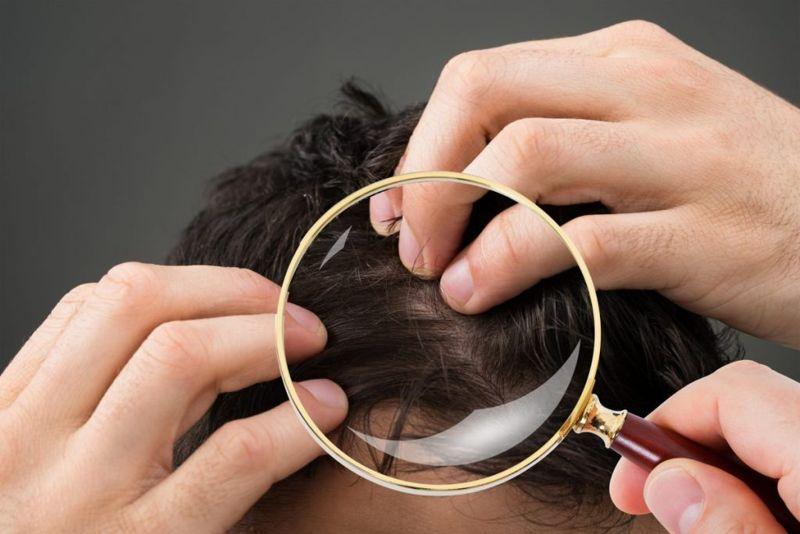 ingrown hair scalp infections