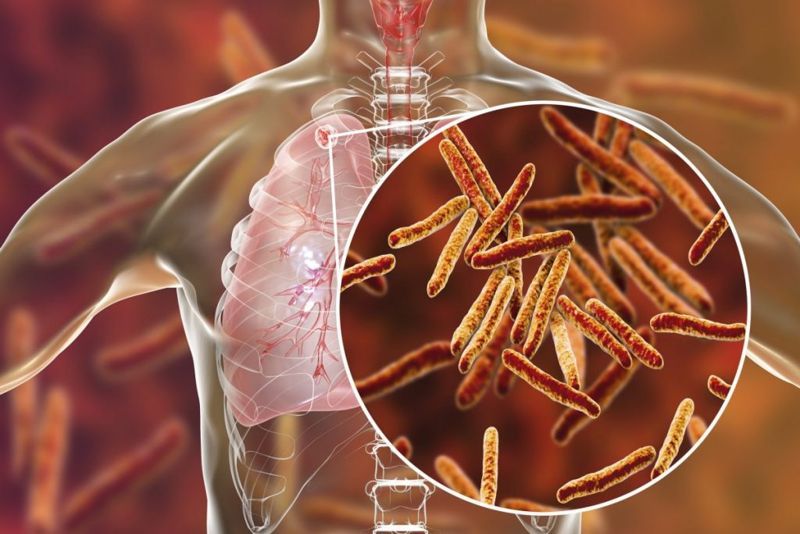tuberculosis respiratory infections