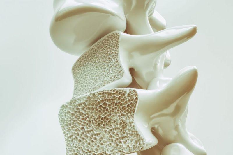 bone health The thyroid