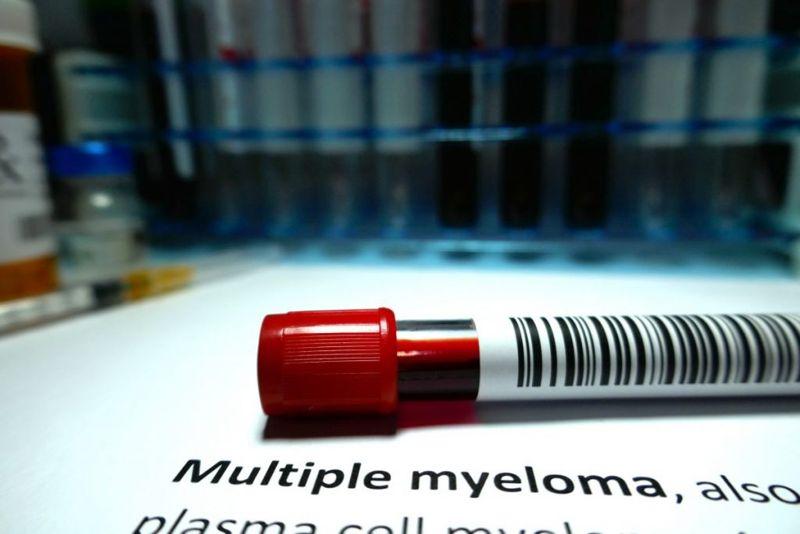 protein monoclonal gammopathy