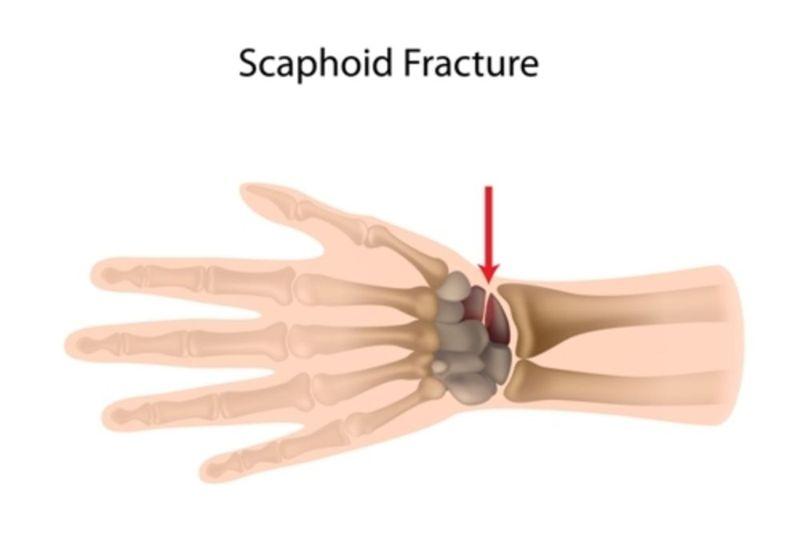 scaphoid fracture bone