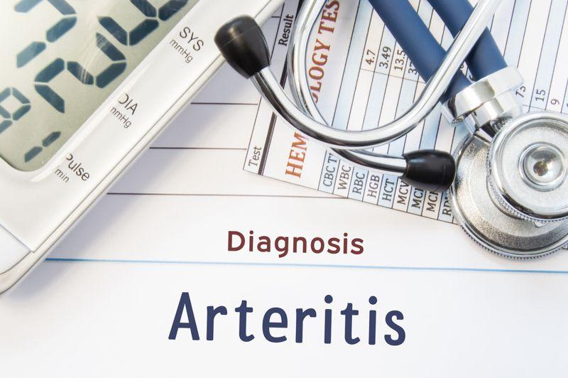 What is Takayasu's Arteritis?