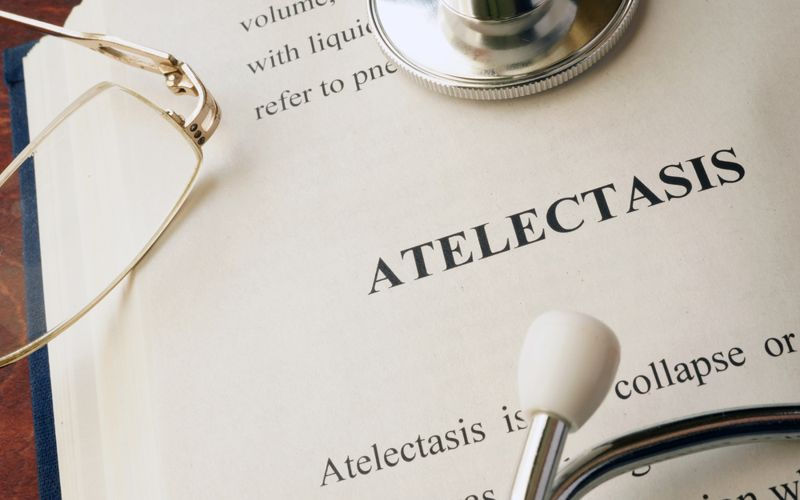 10 Things to Know About Atelectasis