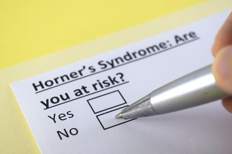 Wallenberg syndrome signs