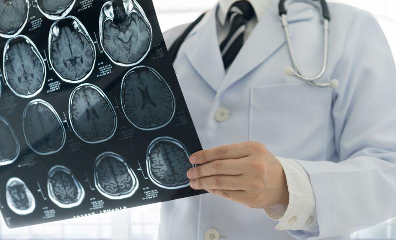 Stress Headache Doctor
