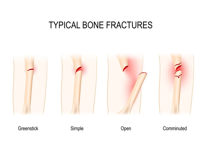 bone Fractures