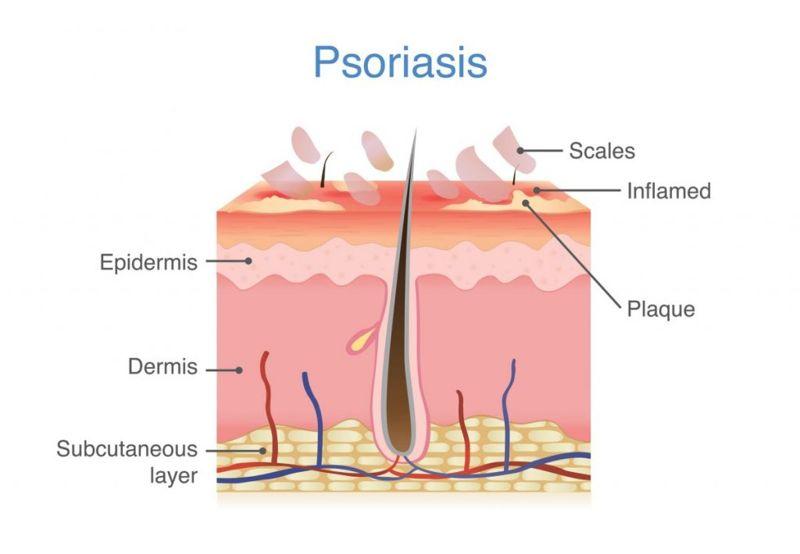 subcutaneous the skin