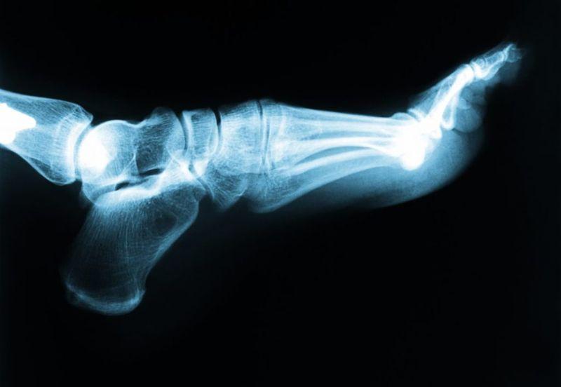 feet bones