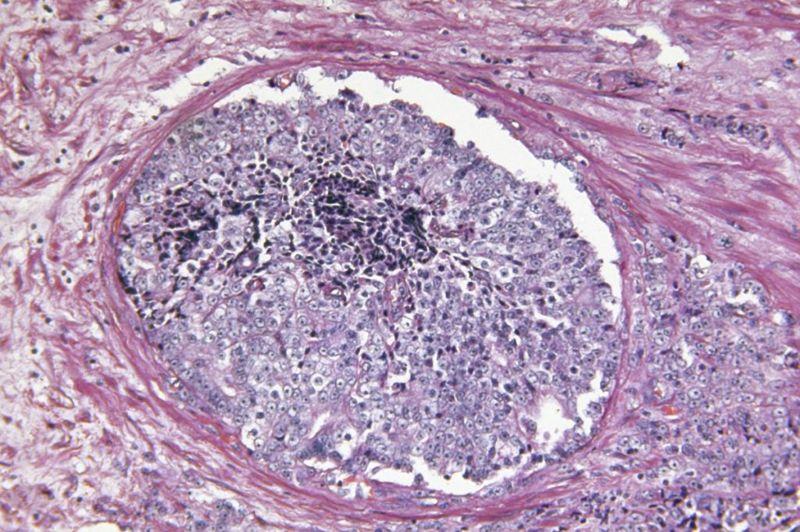 tumor Malignant fibrous histiocytomas