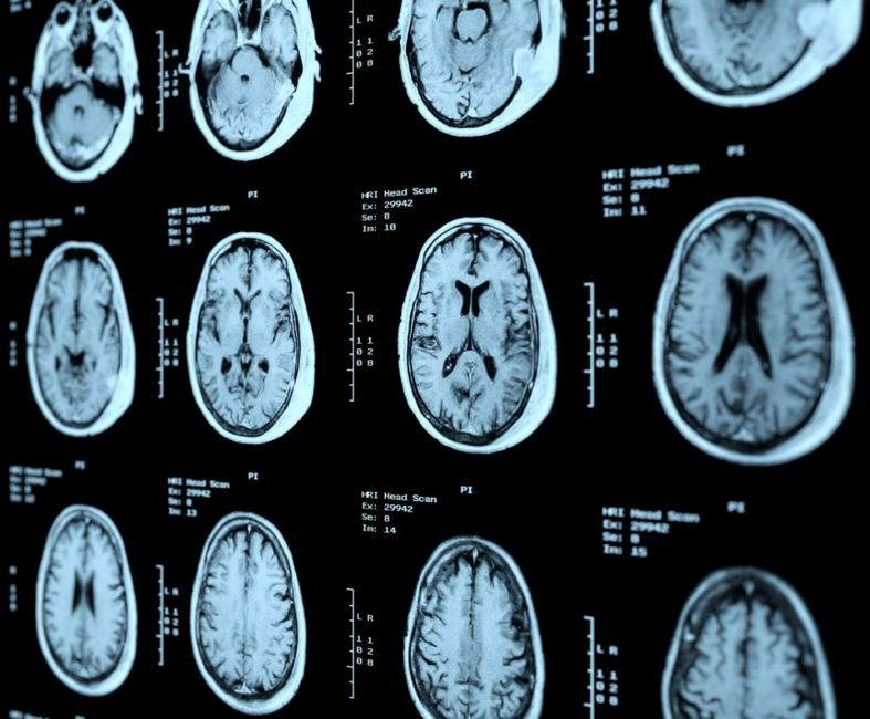 what does The cerebrum do