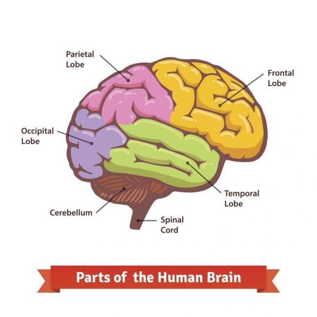 prosopagnosia brain damage