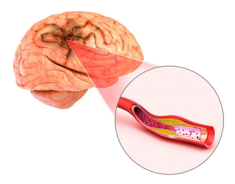 diabetic Amyotrophy MS