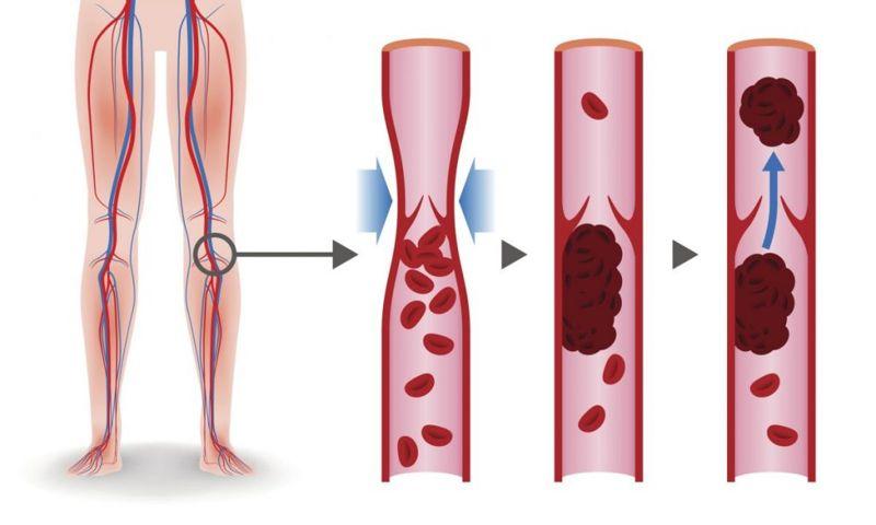 veins artery