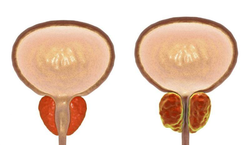 prostate dysuria